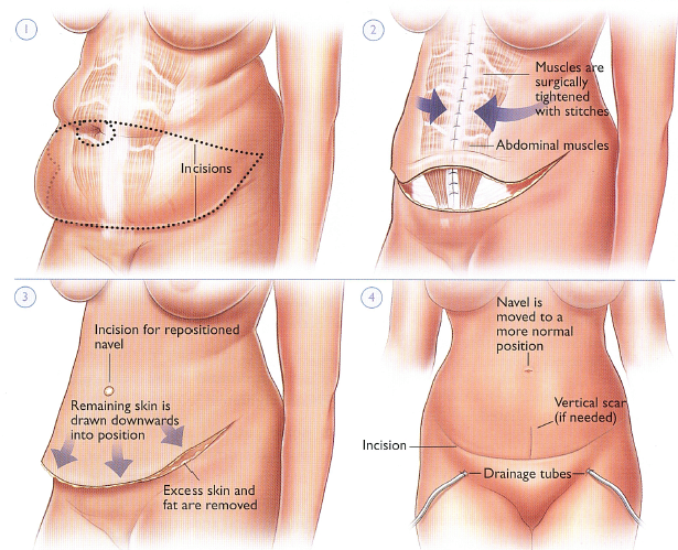 Tummy Tuck abdominoplasty procedure