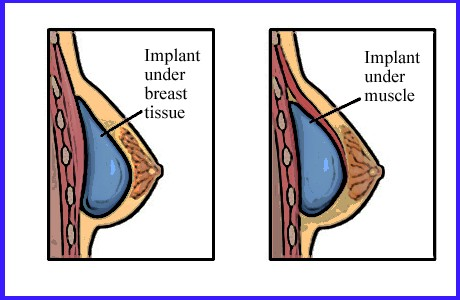 breast augmentation surgeries