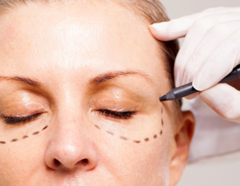 Blepharoplasty Cost & Recovery Time For Eyelid Surgery