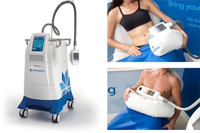 Coolsculpting Cryolipolysis