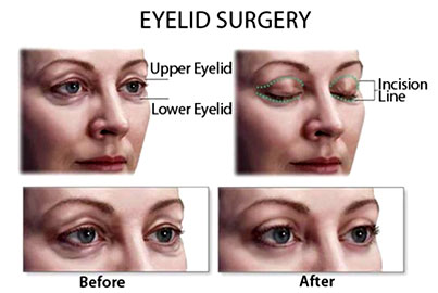 Blepharoplasty or Eyelid Rectification