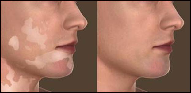 Vitiligo treatment results