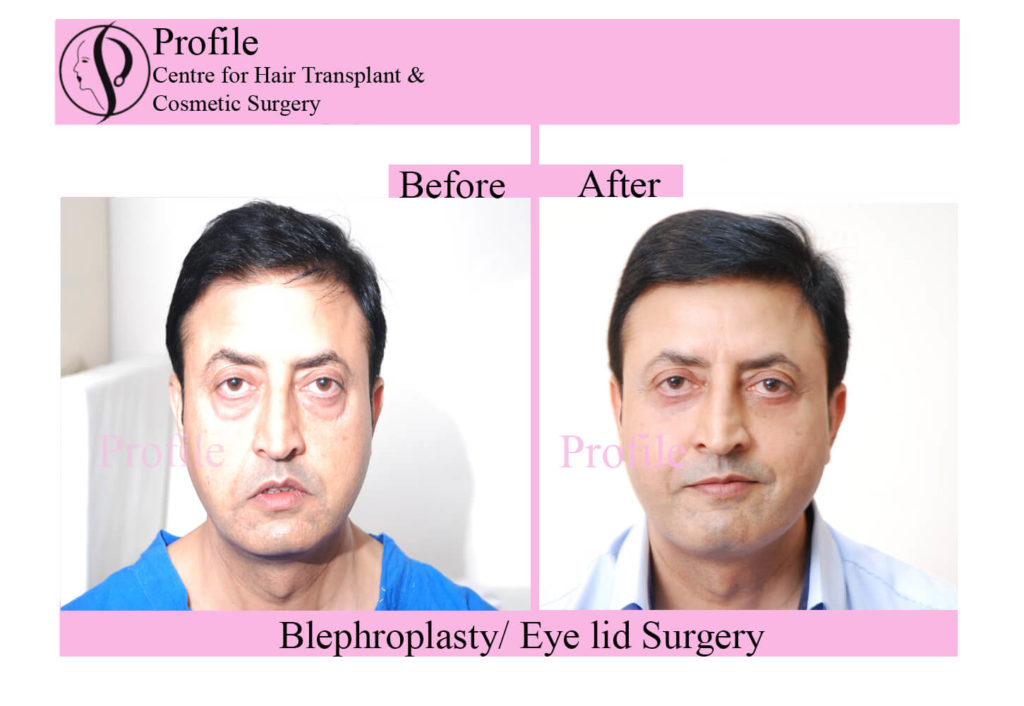 Eyelid Surgery patients results