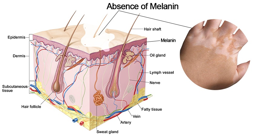 Vitiligo absence