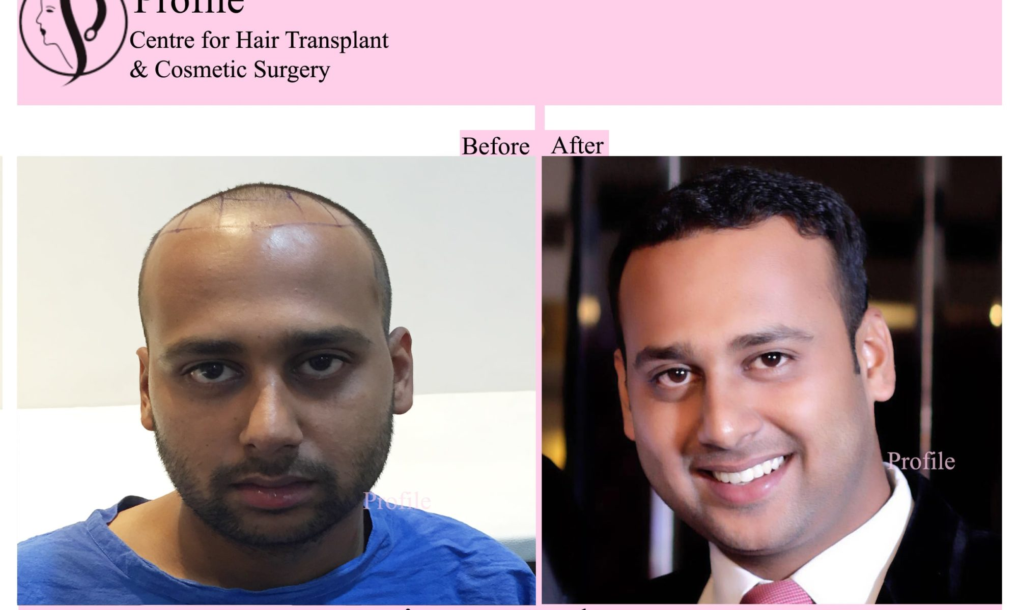 happy hair transplant results