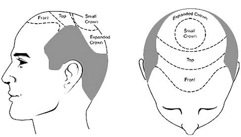 Hair transplant area