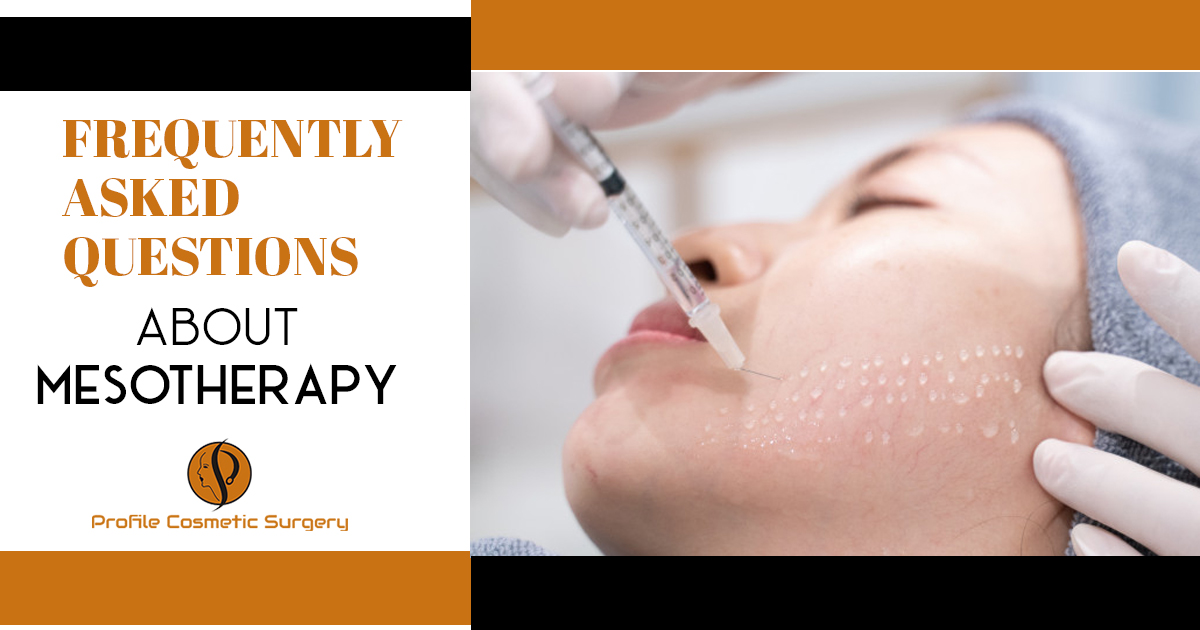 Frequently asked questions about mesotherapy