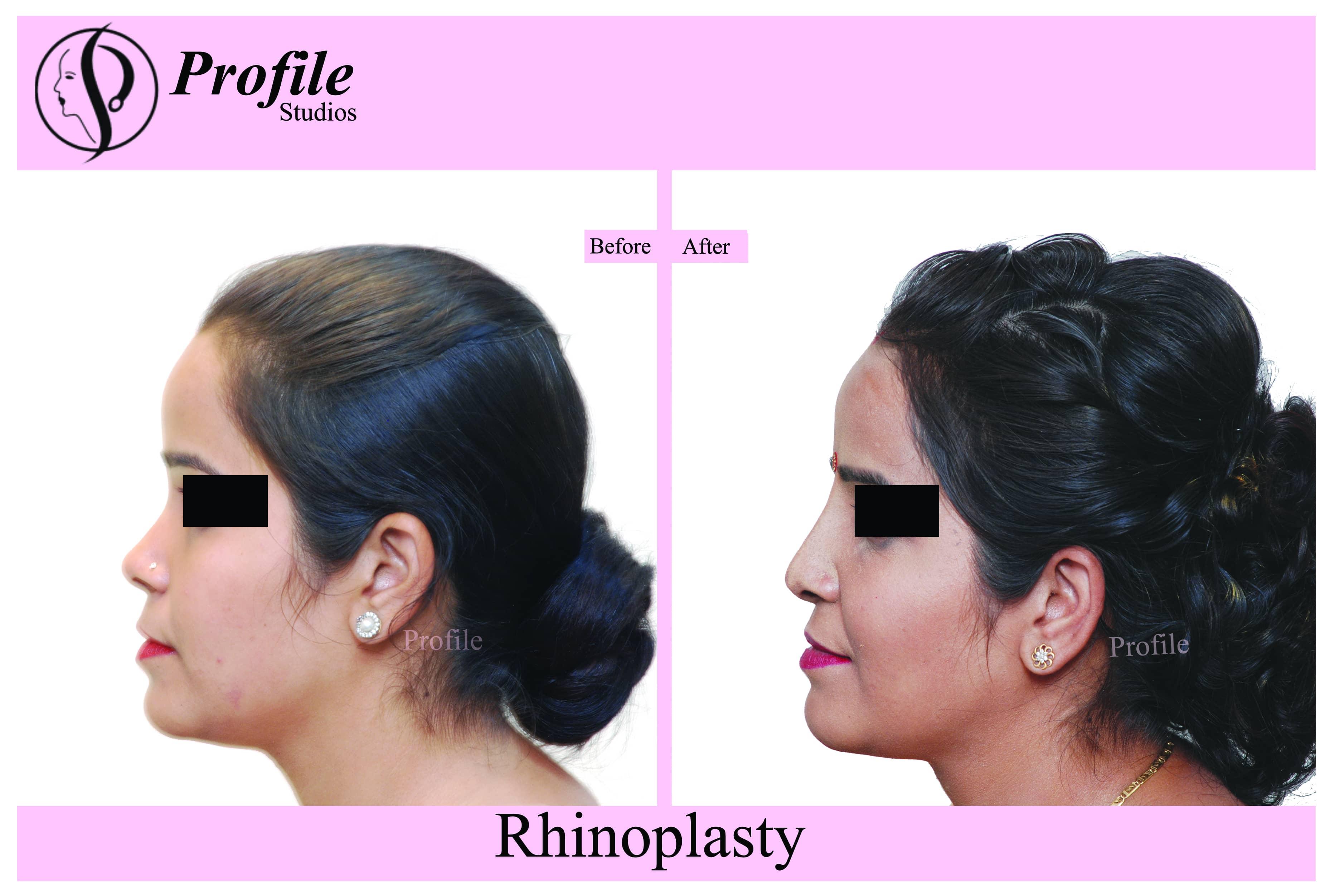 rhinoplasty1_recover_pUvTX