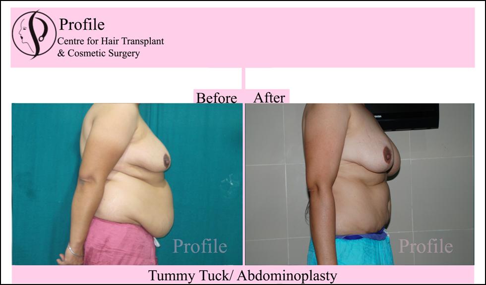 tummy2