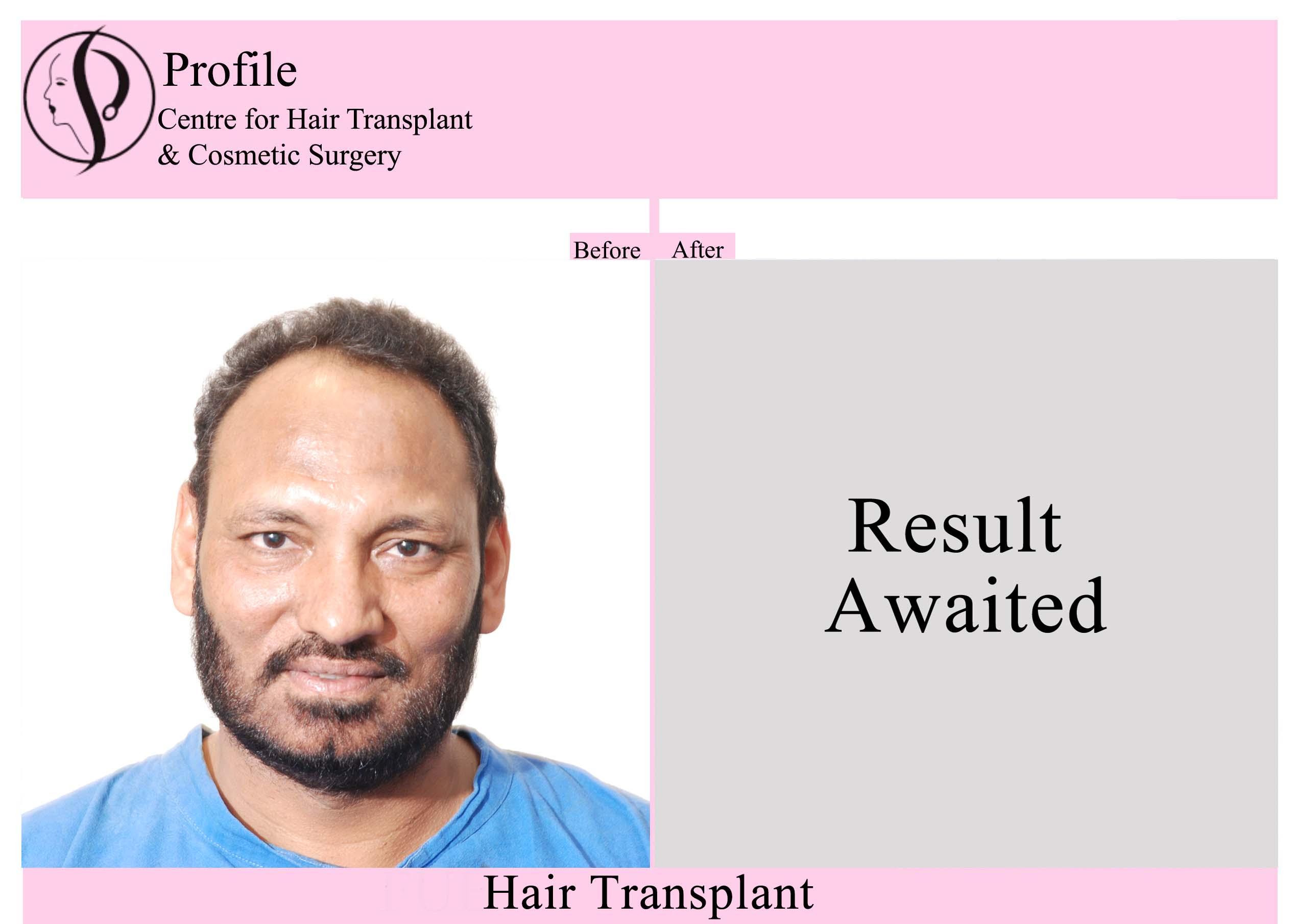 Dr. Kulwant Singh