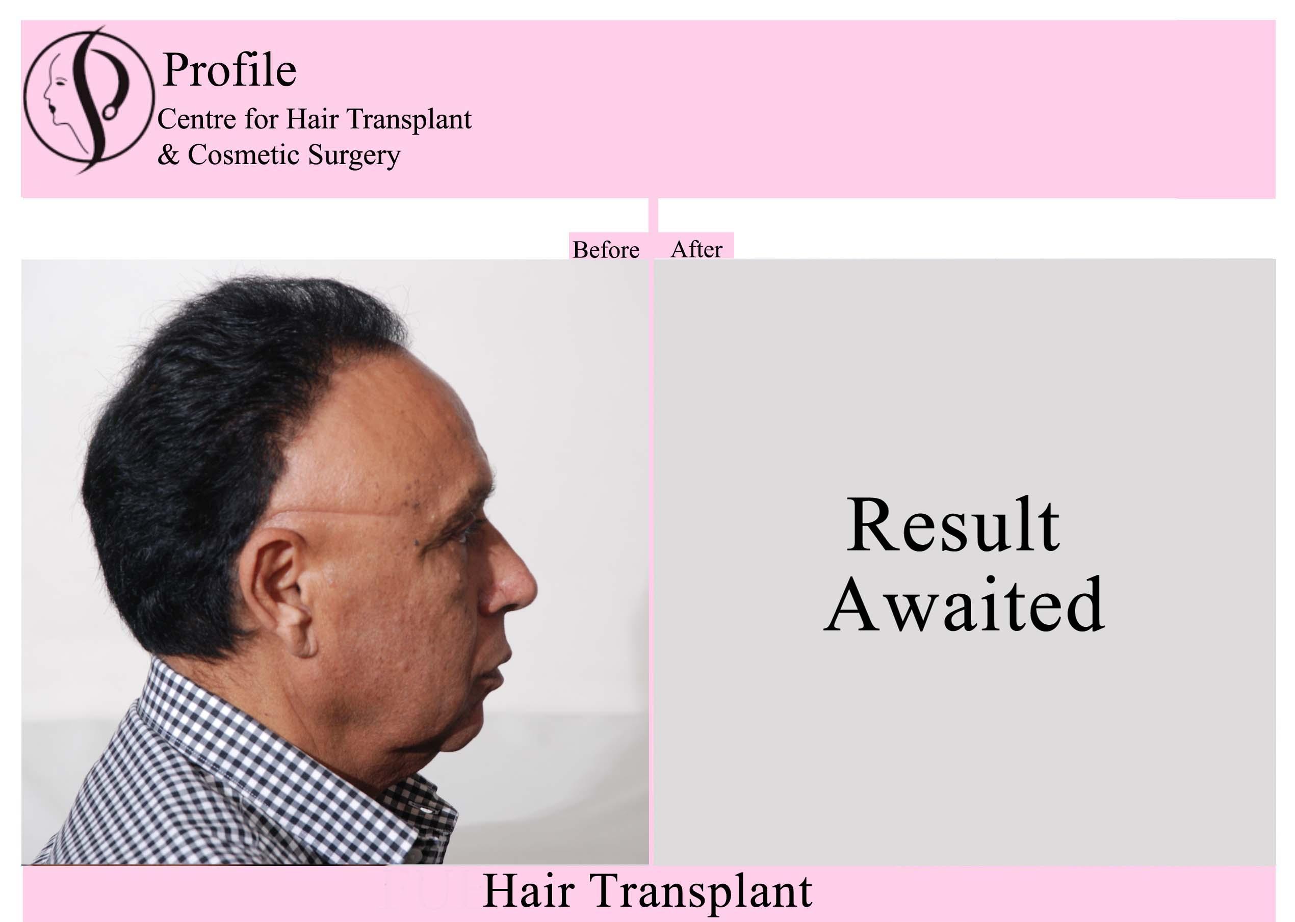Dr. Palwinder Singh