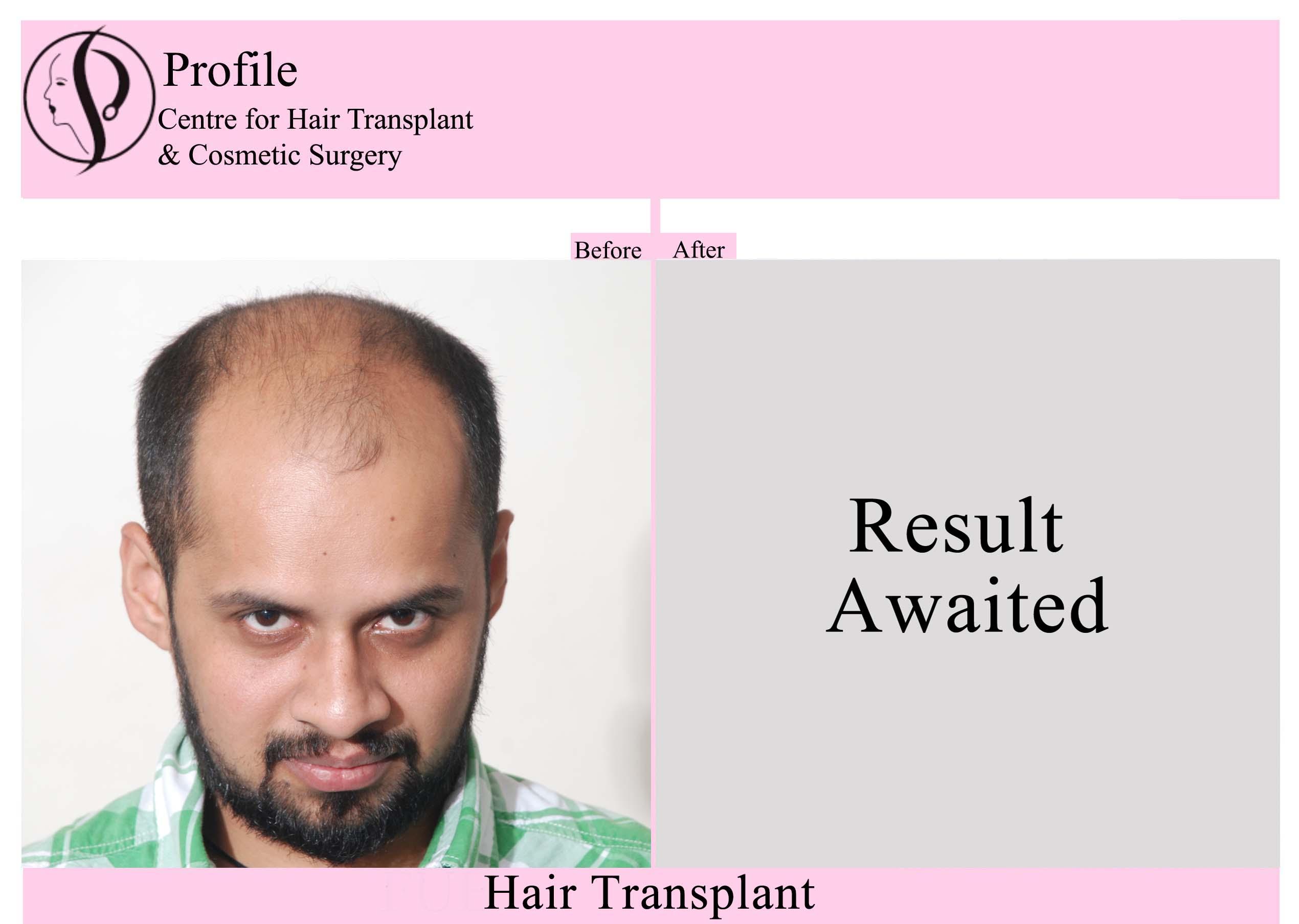Dr. Tarun Verma