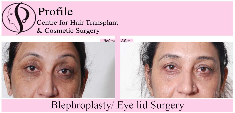 blephroplasty1 (1)