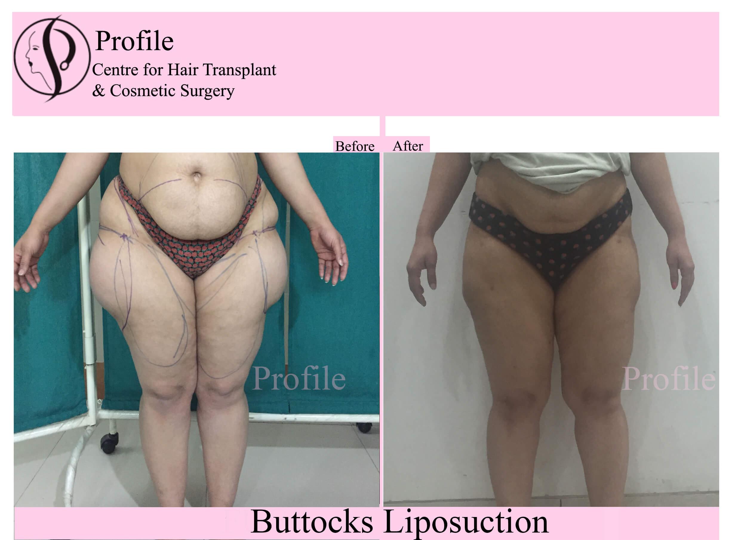 buttocks lipo