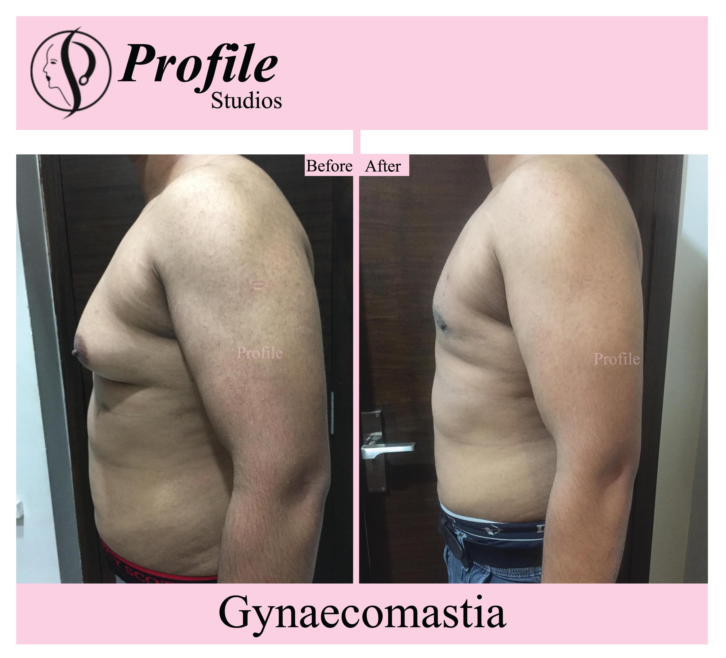 gynaecomastia 1