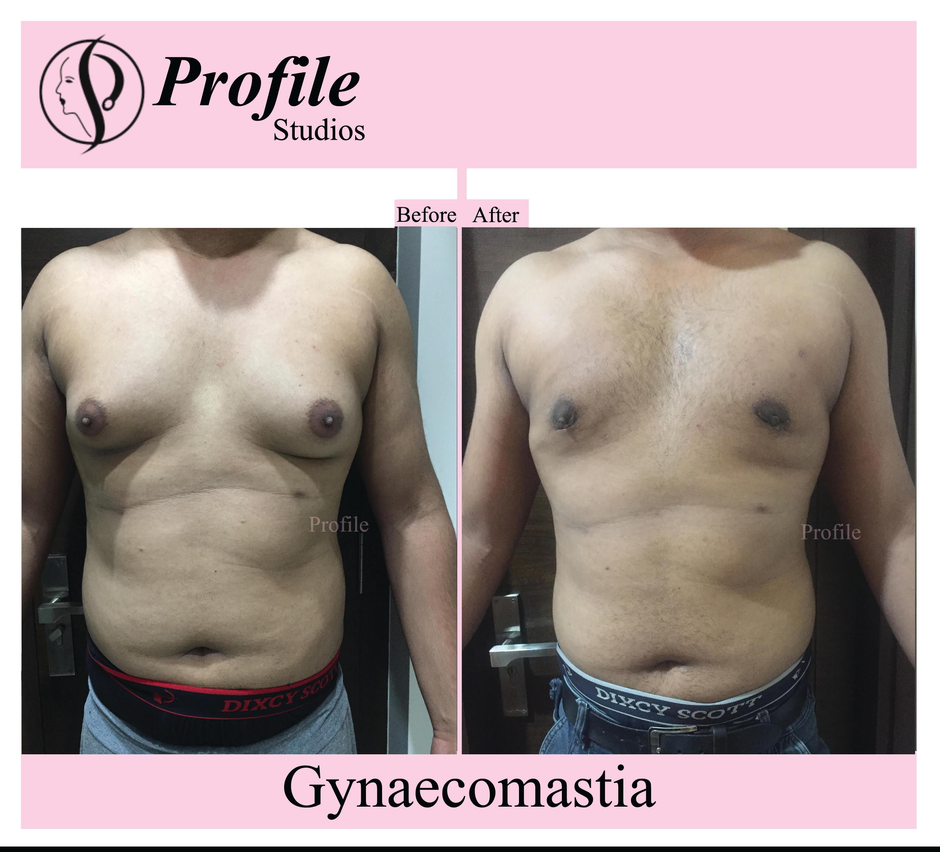 gynaecomastia 2
