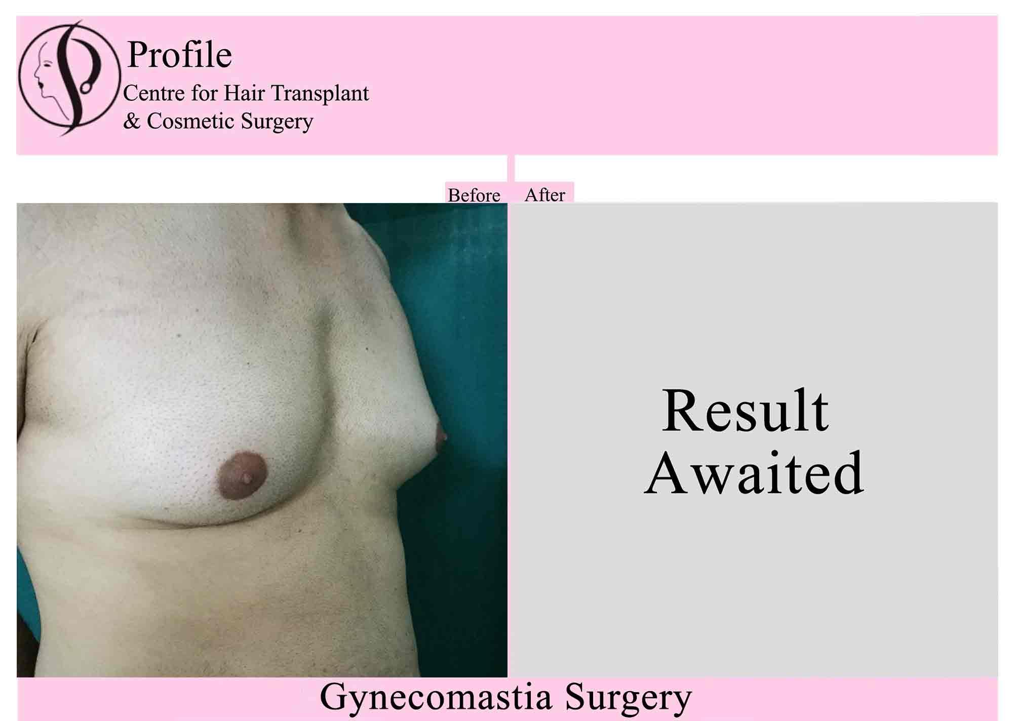 Gynecomastia-Result