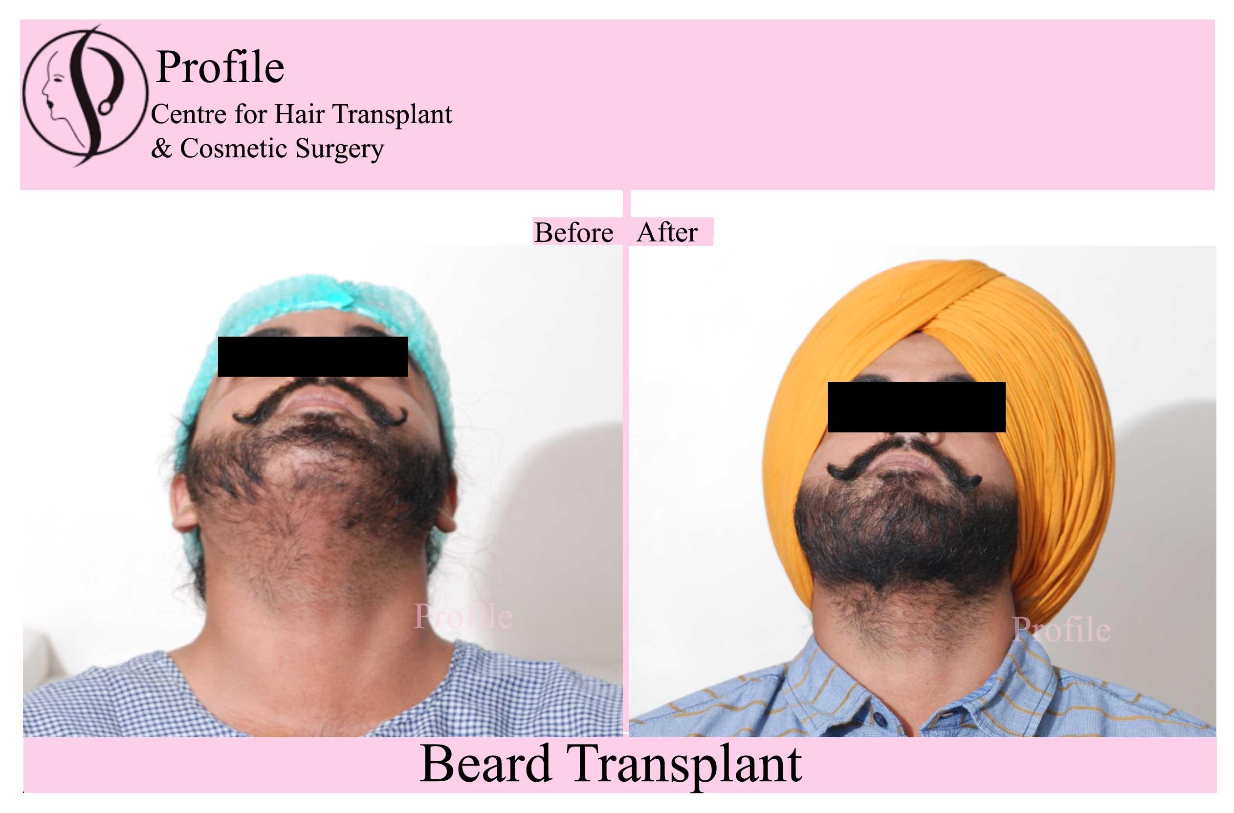 beard-ht-1