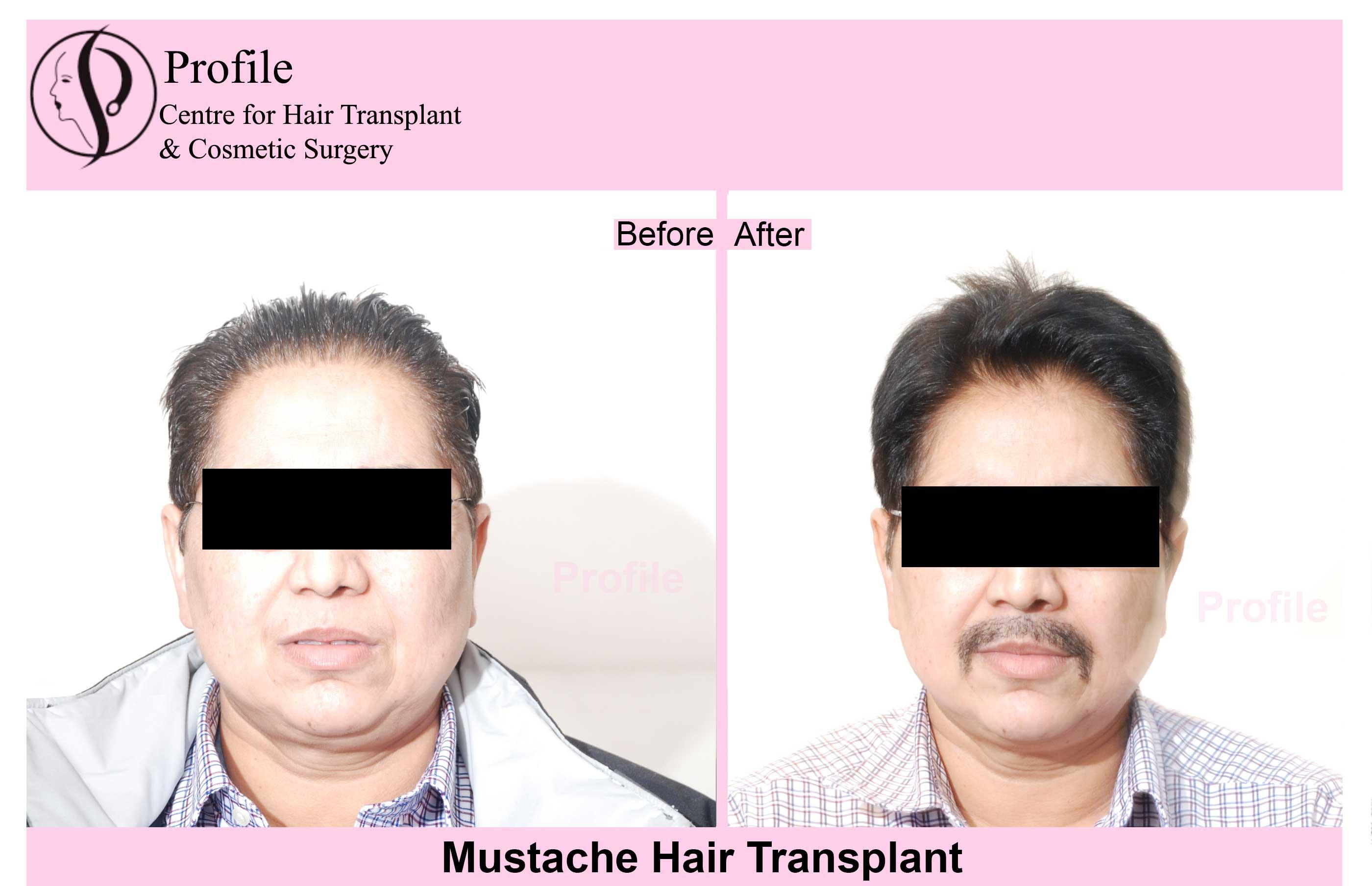 mustache-hair11