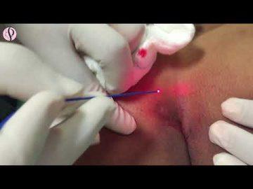 Pilonoidal Sinus Surgery at Profile Studios by Dr Vikas Gupta