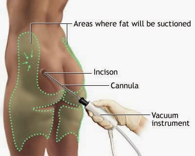 Liposuction area