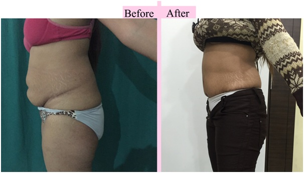 Tummy Tuck results