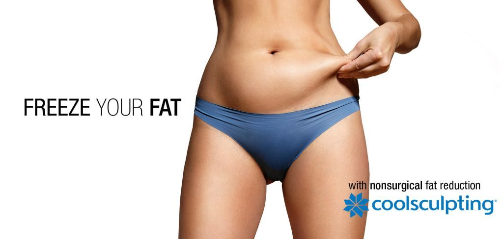 CoolSculpting or Cryolipolysis