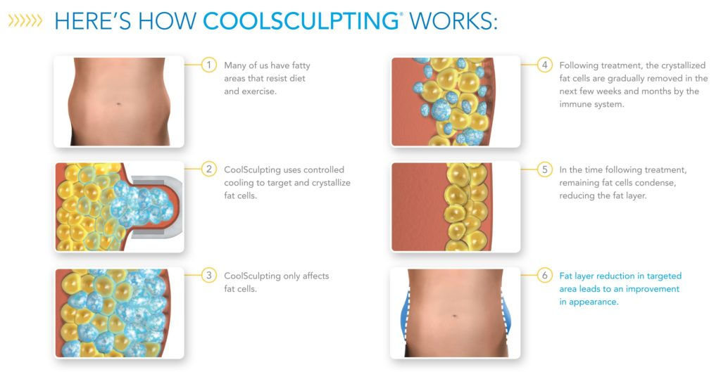 How CoolSculpting is right for you