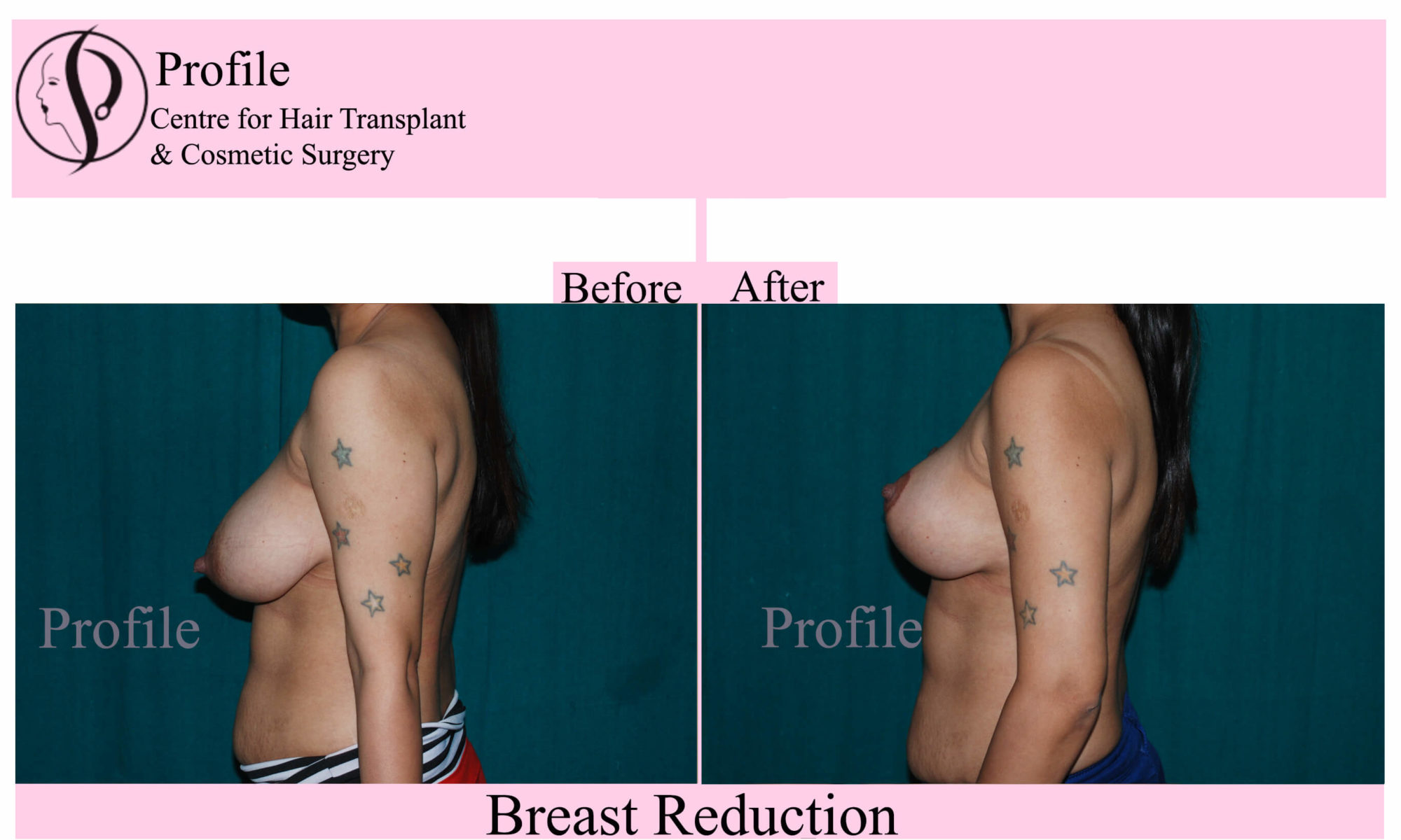 Breast Reduction Surgery results