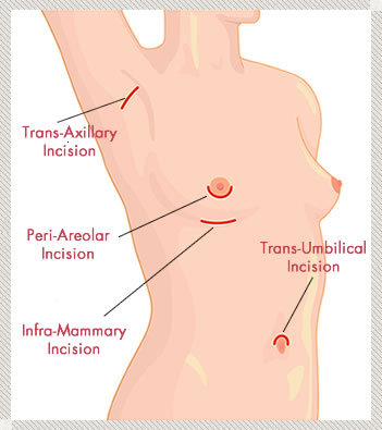 Breast Augmentation areas