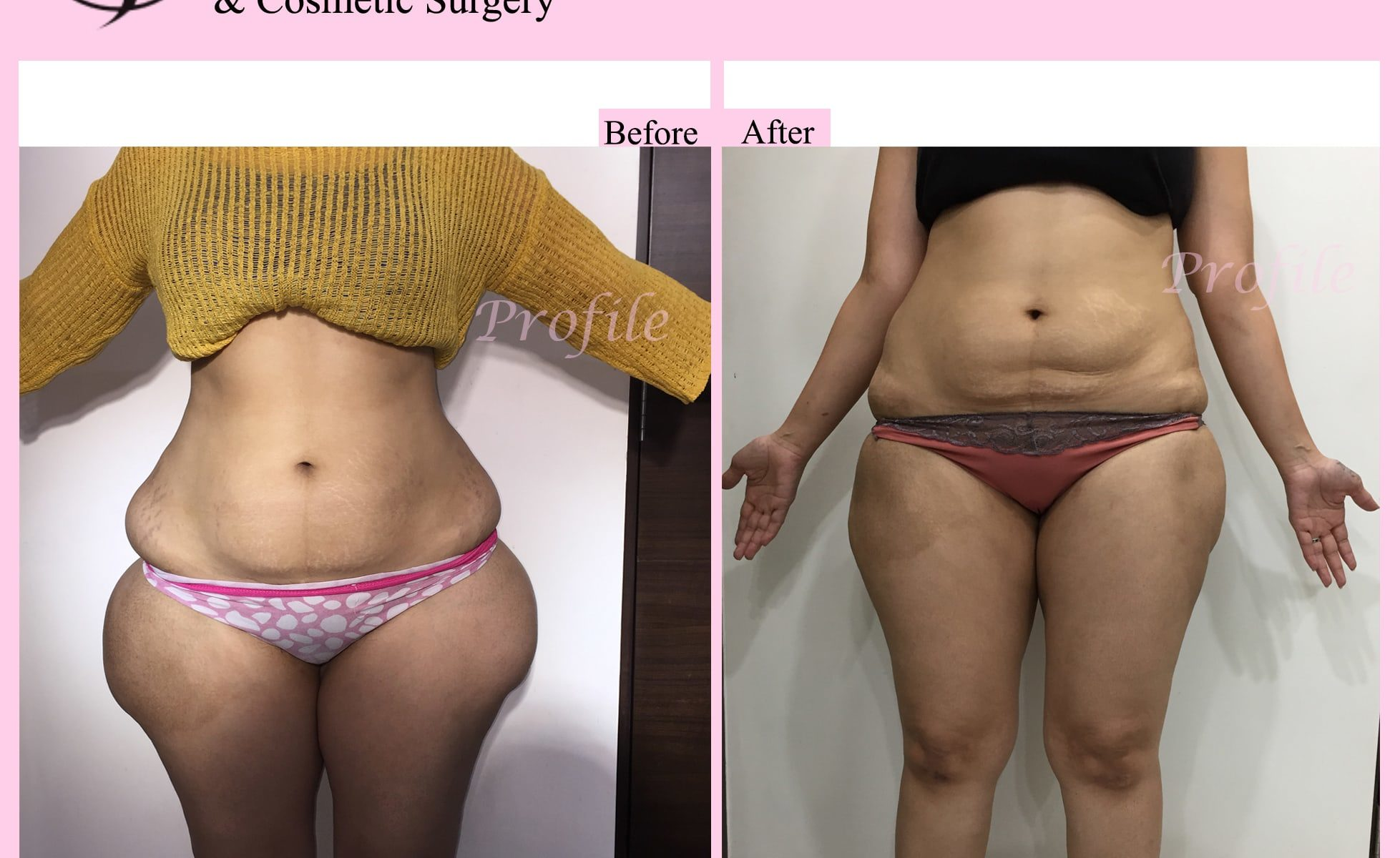 Buttock Liposuction patient results