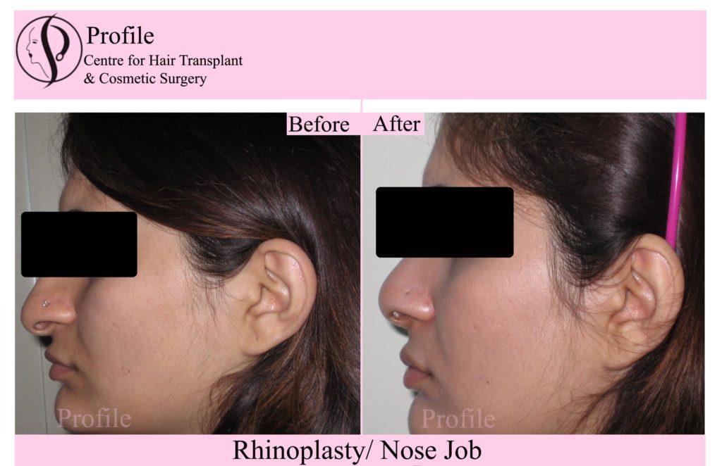 Rhinoplasty results