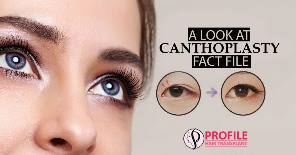A look at Canthoplasty fact file
