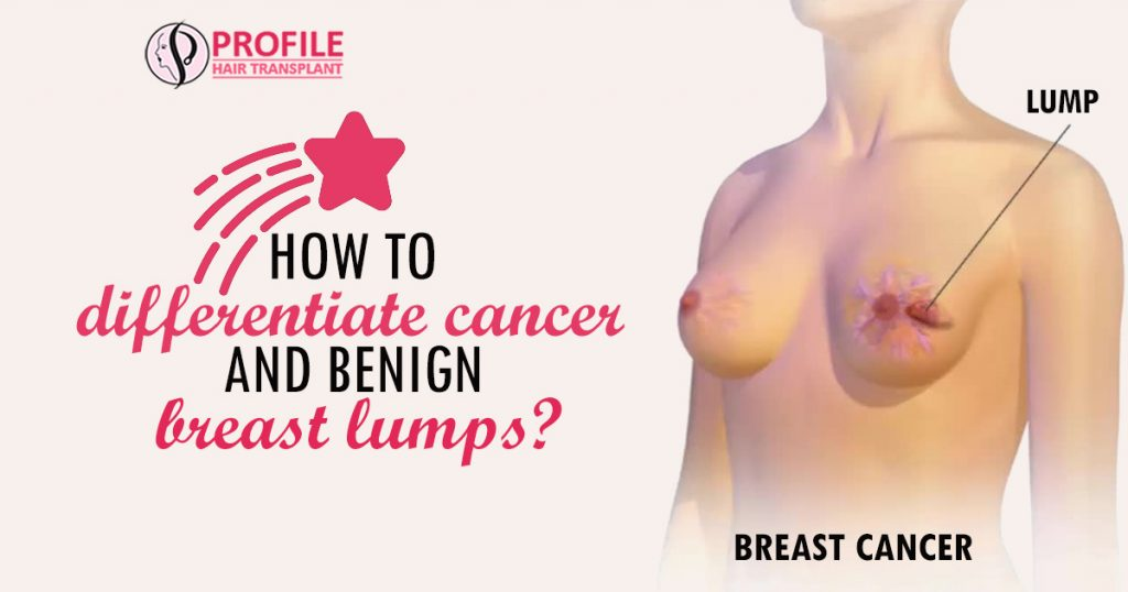 When Is It Normal To Worry About Breast Lumps