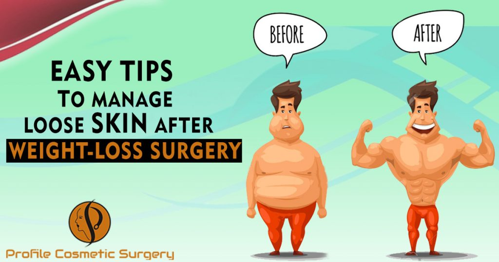 Easy Tips To Manage Loose Skin After Weight-loss Surgery