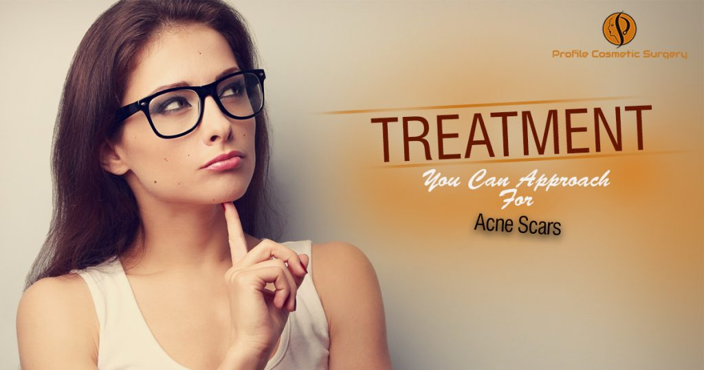 Treatment You Can Approach For Acne Scars