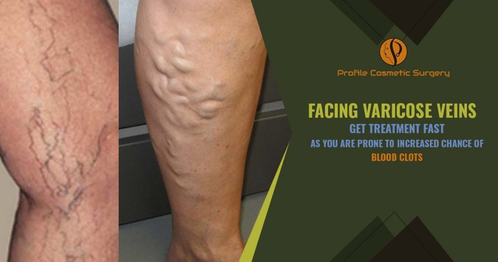 facing Varicose Veins - Get treatment fast as you are prone to increased chance of Blood clots