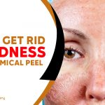 Tips To Get Rid of Redness After Chemical Peel
