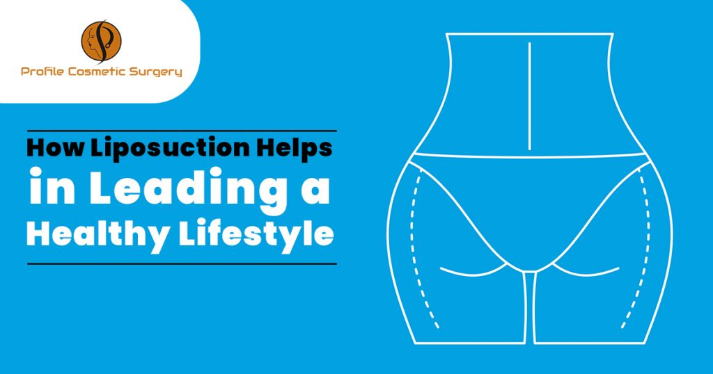 How Liposuction Helps in Leading a healthy lifestyle