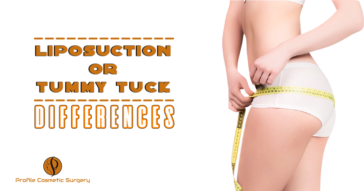 Liposuction or Tummy Tuck – Differences