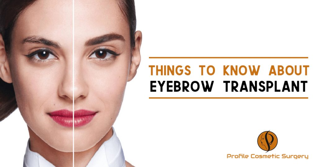 Things To Know About Eyebrow Transplant