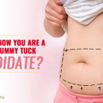 How to know you are a good Tummy Tuck Candidate