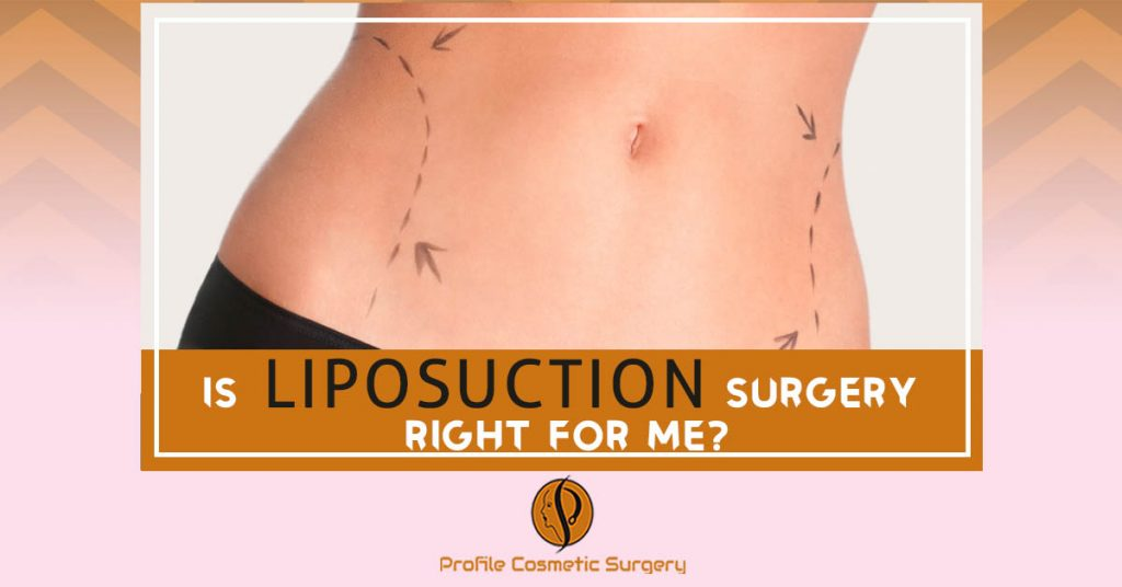 Is Liposuction Surgery Right for me