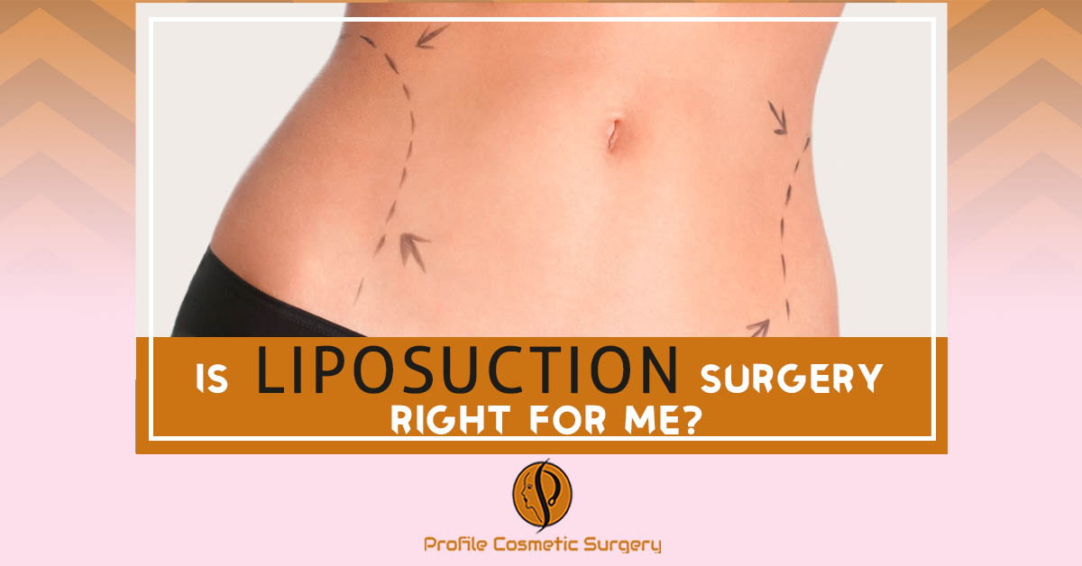 Is Liposuction Surgery Right for me?