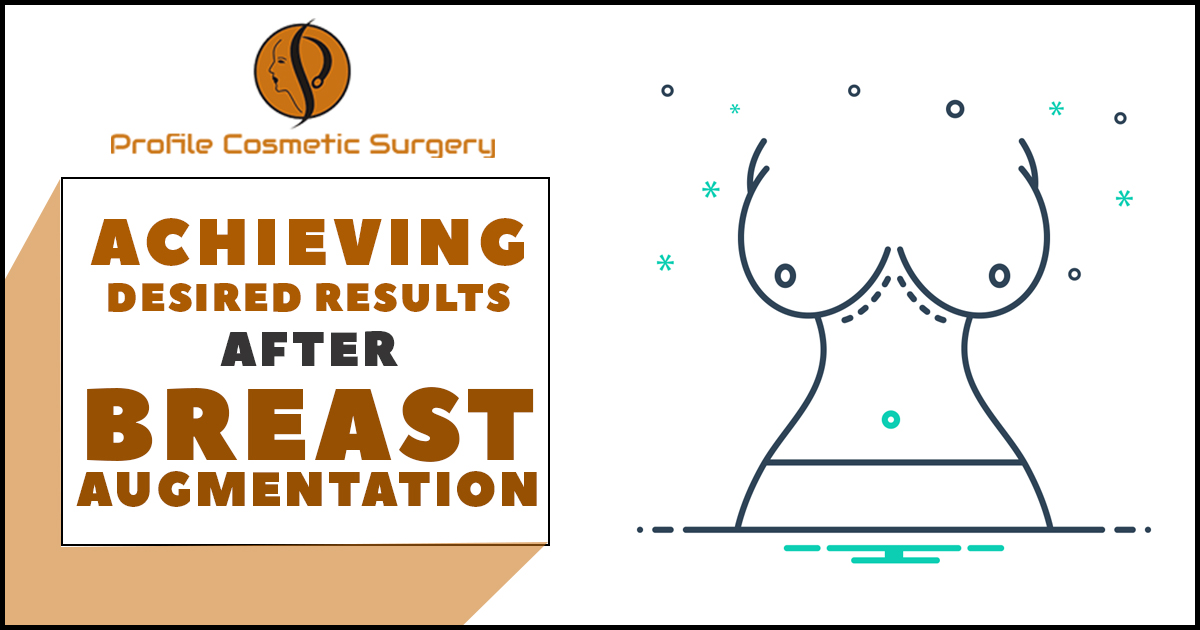 How to achieve the desired results after the Breast Augmentation procedure?