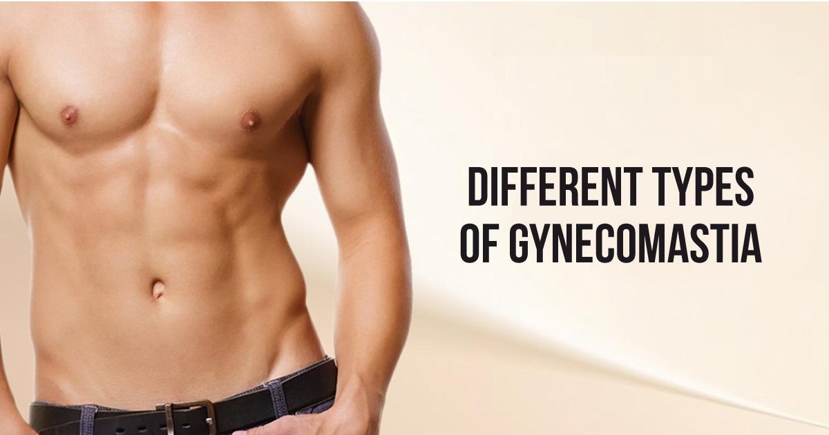 Different Types of Gynecomastia