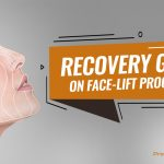 Recovery guide on Face-lift procedure