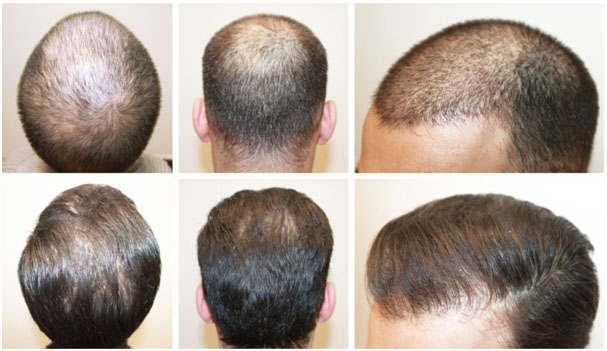 What are the ways which can effectively avoid and manage the FUE scars?