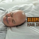 Sleeping after hair transplant