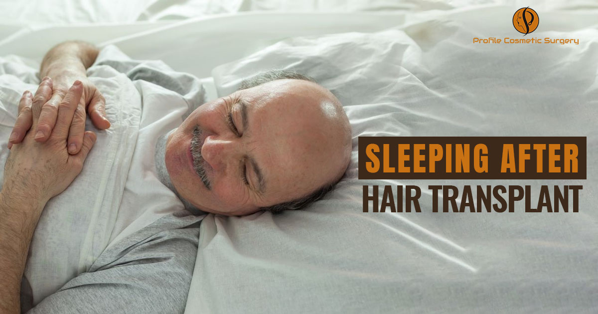Is there anything which needs to be followed for sleeping after hair transplant?